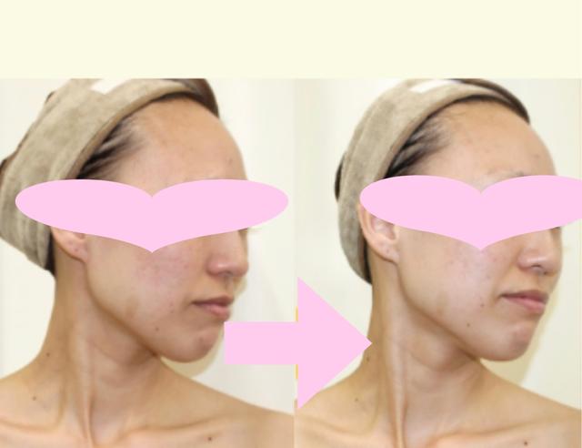 紫外線のお肌のダメージを早めに修復してスーパー小顔矯正